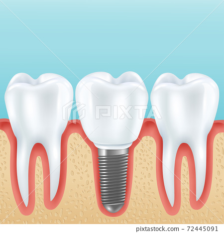 dental implant realistic illustration 72445091