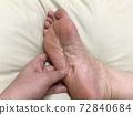 足底浮腫的圖像(腫脹痕跡) 72840684