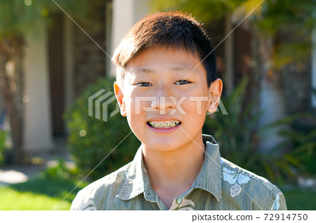 Young teen boy smiling and showing his orthodontic braces on his teeth. 72914750