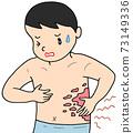 Skin disease / shingles 73149336