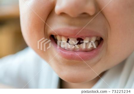 乳齒再生 73225234