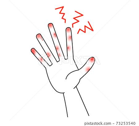 손 균열 73253540