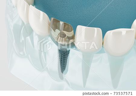 Component of Dental implants transparent. 3D rendering. 73537571