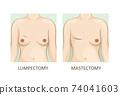 Mammary cancer. lumpectomy vs mastectomy 74041603