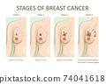 Stages of breast cancer. Medical illustration 74041618