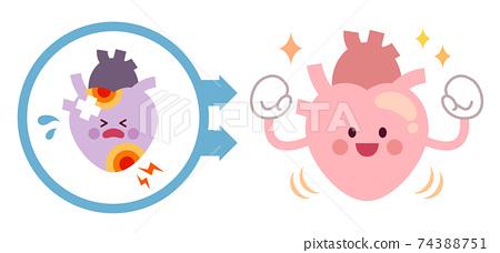 從不健康的心臟變成健康的心臟之前和之後 74388751