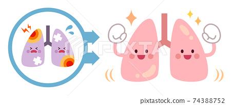 從不健康的肺變成健康的肺之前和之後 74388752