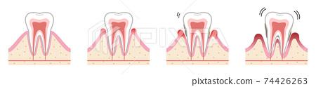 牙周疾病 74426263