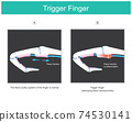 Trigger finger. illustration explain a symptom of locked finger caused by a problem with the tendon of human finger which can not inability to move fingers. illustration.. 74530141