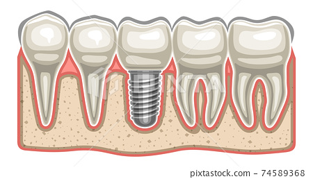 Vector illustration of Dental Implant 74589368