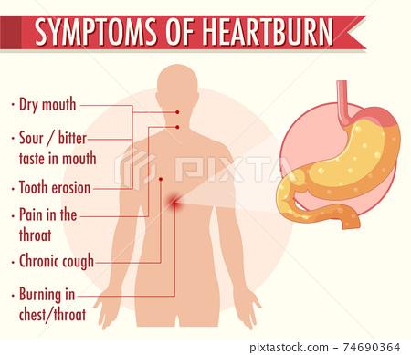 Symptoms of heartburn information infographic 74690364