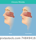 Chronic Rhinitis. This illustration medical use for explain comparison chronic rhinitis symptoms have mucus in the nose and throat. . 74849416