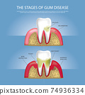 Human teeth Stages of Gum Disease Vector Illustration 74936334