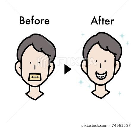 牙齒美白之前和之後的插圖 74963357