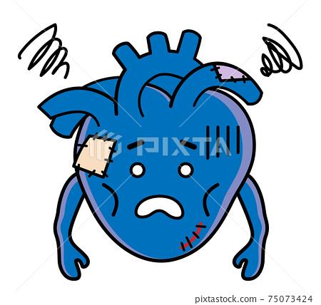心臟疾病心臟疾病治療插圖素材 75073424