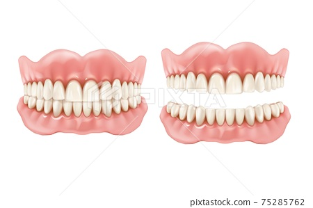 Denture, dental teeth and jaw realistic prosthesis 75285762