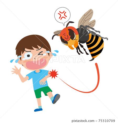꿀벌에 찔려 아파하는 남자의 일러스트 75310709