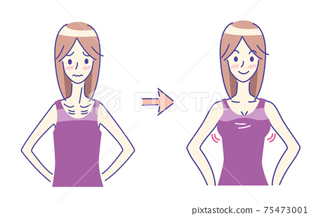 Before-after simple illustration of a woman suffering from over-the-top 75473001