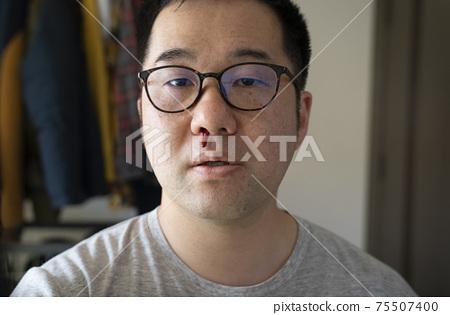 中年男子流鼻血 75507400