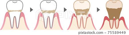 牙周疾病過程 75589449