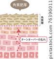 橫斷面 皮膚 人體皮膚 76396011