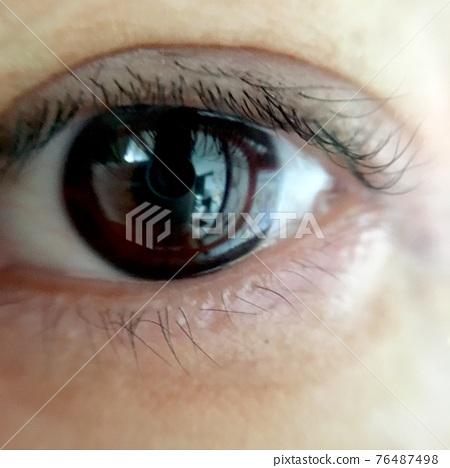 눈, 눈알, 눈동자 76487498
