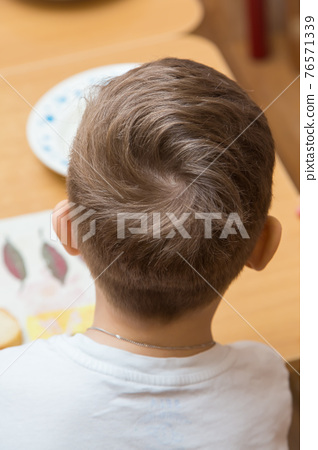 The back of a boys head with curled hair on top. 76571339