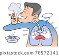 lung, pulmonary, tobacco 76572141