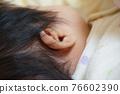 baby, infant, ear 76602390