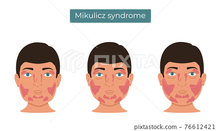 Vector illustration of Mikulicz syndrome. Enlargement of the lacrimal and salivary glands. 76612421