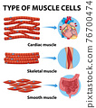 Type of muscle cells 76700474