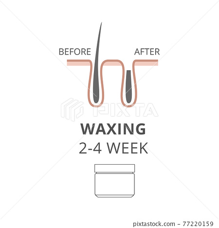 Hair removal wax, depilation epilation before and after a vector illustration. 77220159