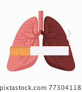 Comparing Lungs with Cigarette butt 77304118