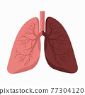 lungs vector with Comparing Lung 77304120