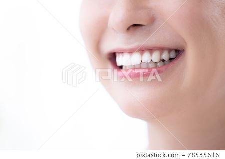 이, 이빨, 치아 78535616