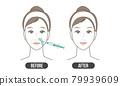 鼻唇溝治療(簡單) 79939609