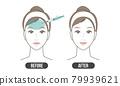 皺紋處理(簡單) 79939621