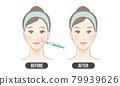 鼻唇溝治療(彩色) 79939626