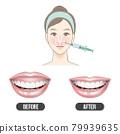 露齦笑治療 79939635