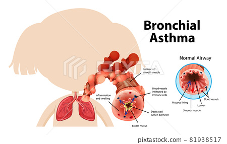 Bronchial Asthma diagram with normal airway and asthmatic airway 81938517