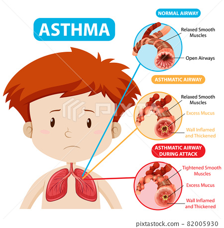 Asthma diagram with normal airway and asthmatic airway 82005930