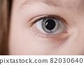 focus on eye 82030640